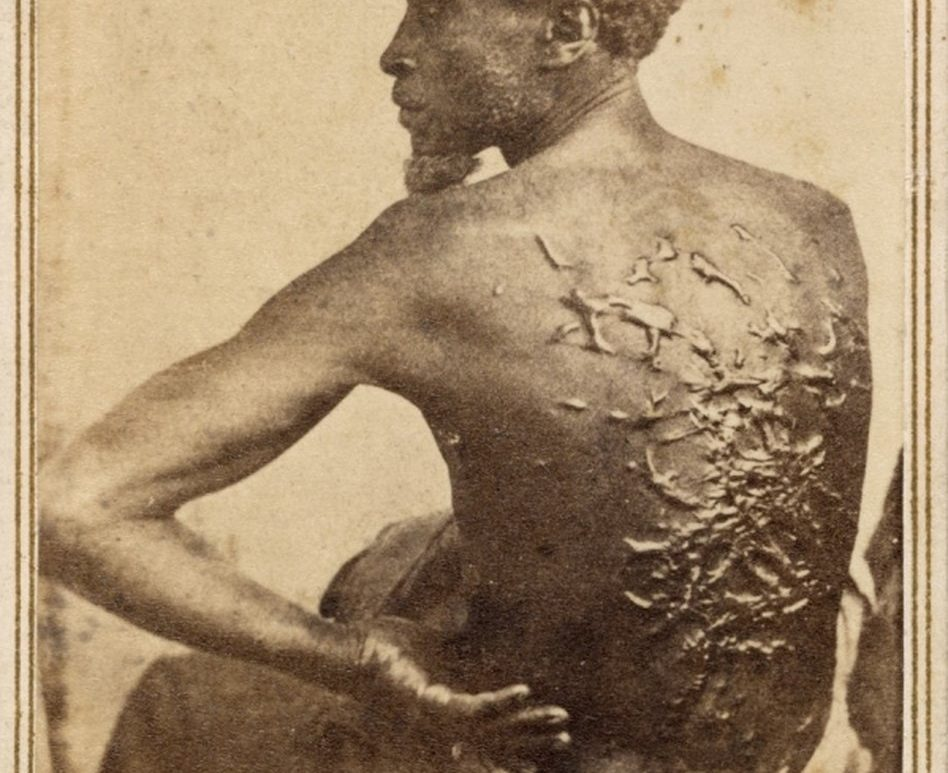 Scars! Homeschooling the History of Slavery – Histories of the Unexpected